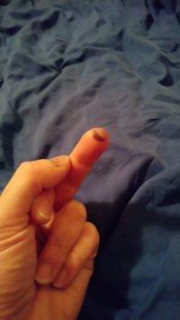 Blutblase am Mittelfinger